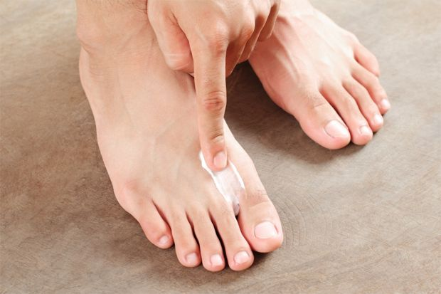 Лечение дисгидротической формы грибка стопы с помощью медикаментов и средств народной терапии