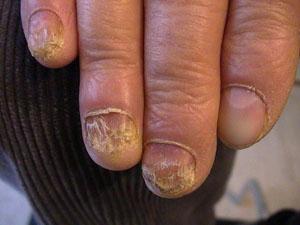 Грибок ногтей на руках: как быстро избавится от микоза в домашних условиях, эффективное лечение препаратами, мазями