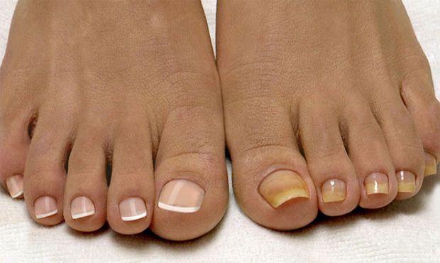 Несколько советов о том, как правильно определить грибок на ногтях ног и не спутать его с другими заболеваниями