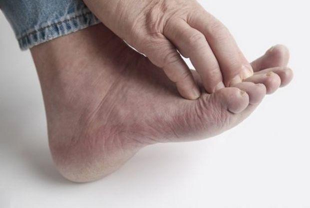 Особенности диагностика и лечение сквамозной формы микоза стоп