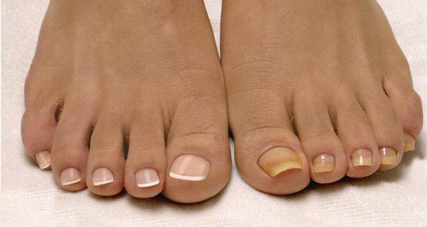 Грибковые заболевания ногтей - мифы, связанные с заболеванием, грибок ногтей и кожи рук и стоп, негрибковые поражения ногтей и кожи, последствия заболевания