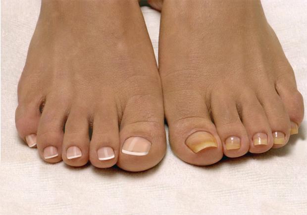 Грибковое поражение ногтевой пластинки на большом пальце: лечение и профилактика