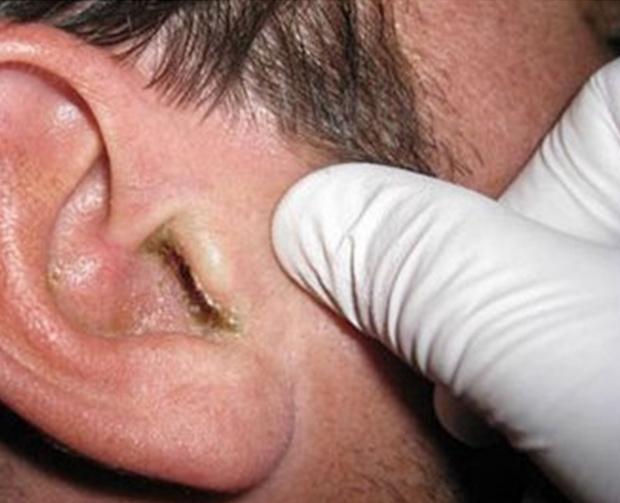 Чем опасна себорея в ушах у человека