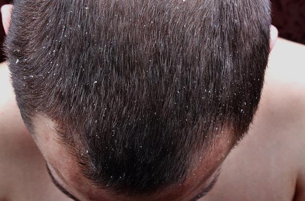 Мазь от себореи на голове