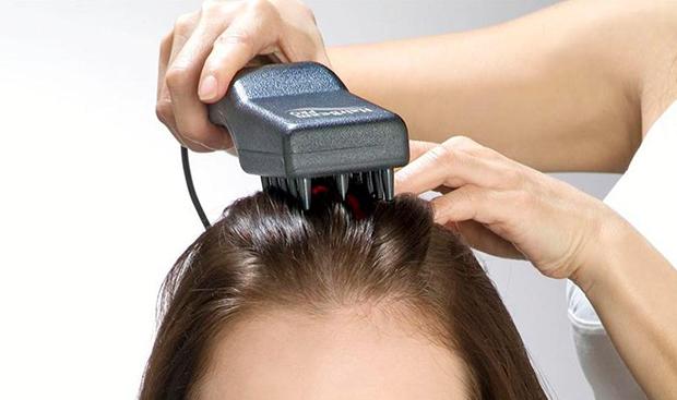 Лазерная терапия от себореи кожи головы