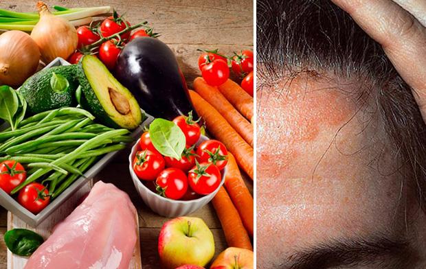 Правильное питание при себорейном дерматите