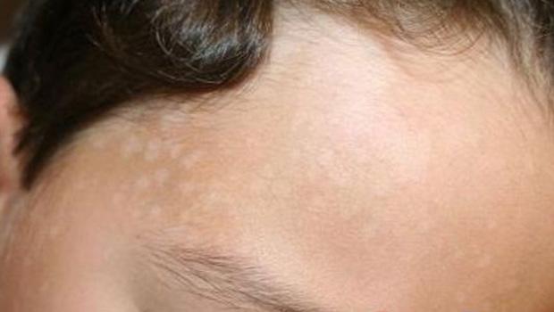 Причины, лечение отрубевидного лишая на лице