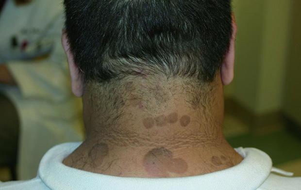 Бордово-коричневыми пятна на шее