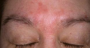 Себорейный дерматит на лице