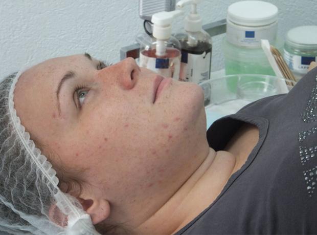 Особенности лечения заболевания на носу