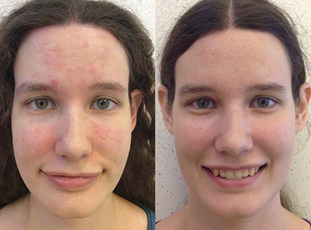 Лечение себорейного дерматита на коже