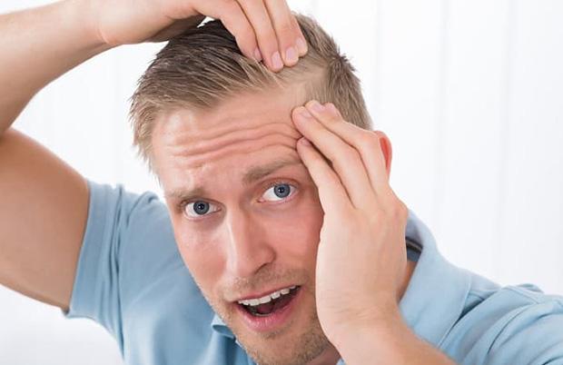 Себорея - причина выпадения волос