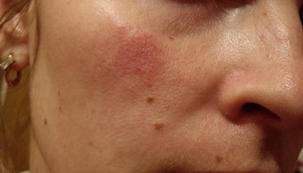 Причины возникновения дерматита
