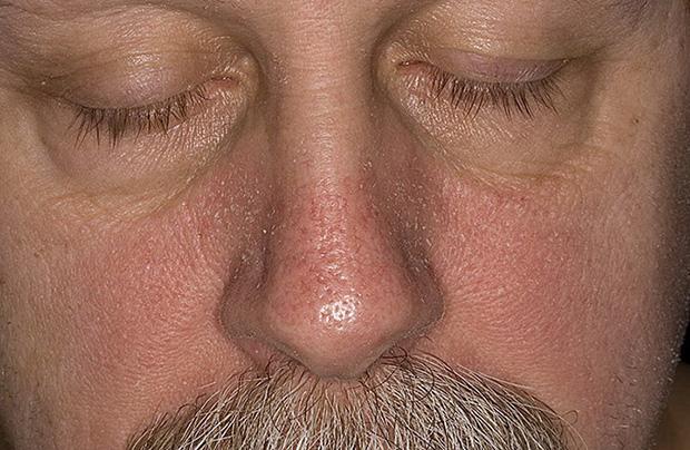 Хроническое воспалительное заболевание