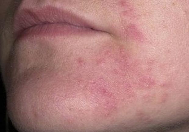 Симптомы себореи