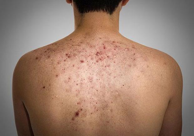 Последствие кожной себореи