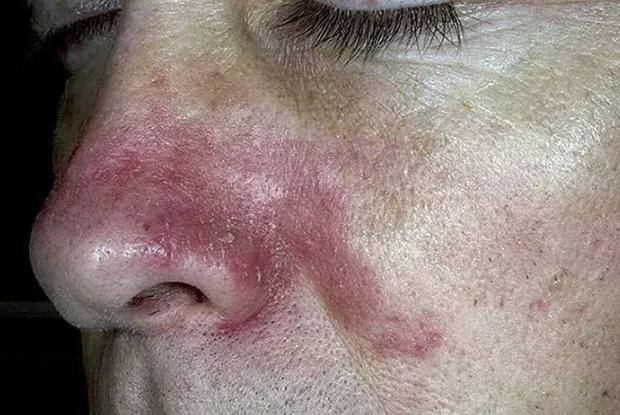 Признаки себореи на коже