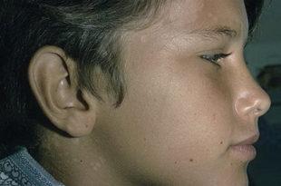 способы лечения отрубевидного лишая у ребенка
