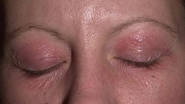 заболевания на глазах и веках