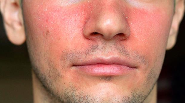 Способы лечения себореи на лице