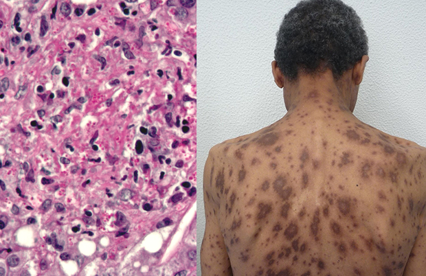Гистоплазмоз - болезнь Дарлинга