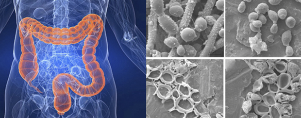 Грибковая инфекция кишечника