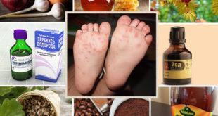 Лечение микоза стоп народными средствами