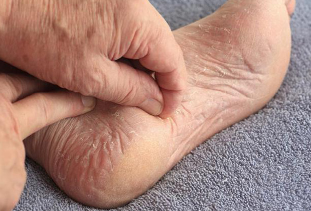 Дерматит на ногах и пятках