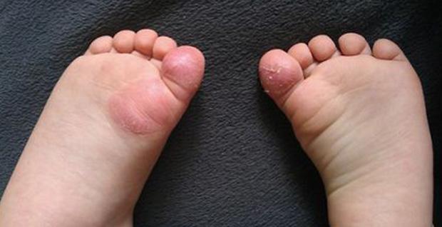 Микоз на ноге, пальце, стопе у детей