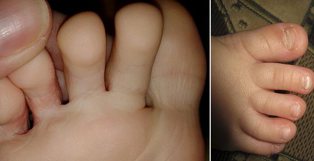 Формы грибка на ногах