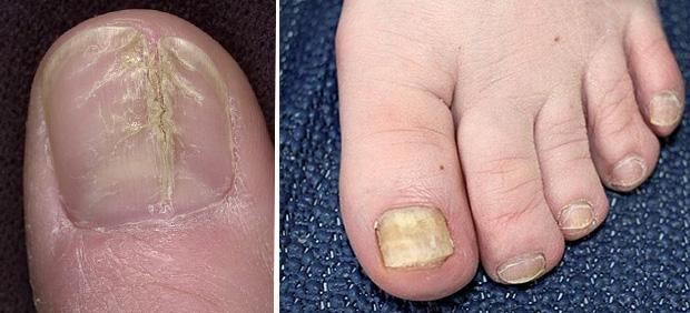 Поражение ногтевых пластин