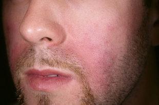 Причины, лечение себорейного дерматита сухого типа на лице