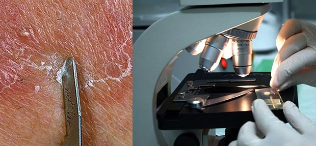 Микроскопическое исследование соскоба кожи