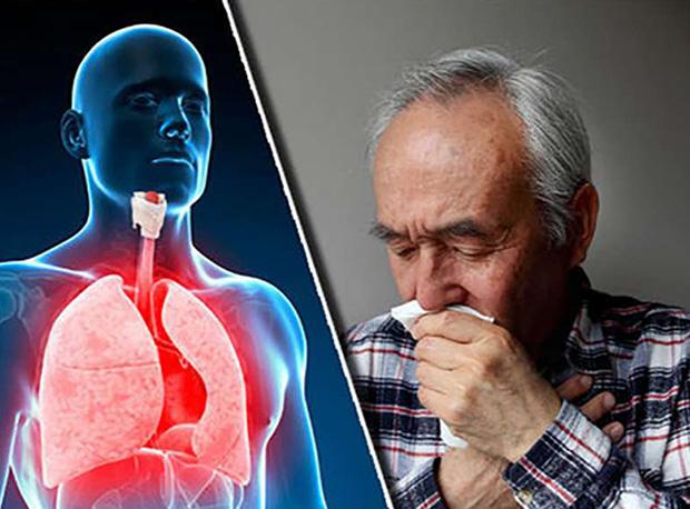 Симптомы и лечение грибка в лёгких