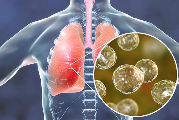Инфекционная болезнь легких