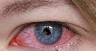 Причины заражения грибковым кератитом: симптомы, лечение