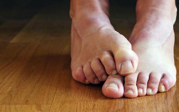 Лечение микоза пальцев ног. Мази