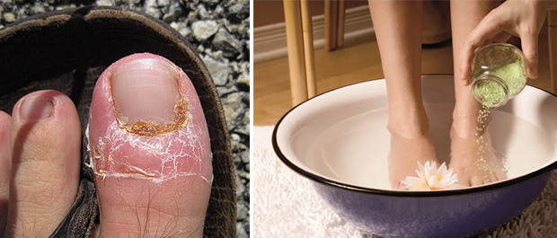 Противогрибковые ванночки для борьбы с вирусом