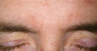 Симптомы и методы диагностики себореи на бровях