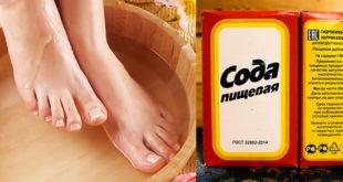 Содовые ванночки для лечения грибка на ногах