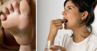 Таблетированные препараты для борьбы с микозом стоп