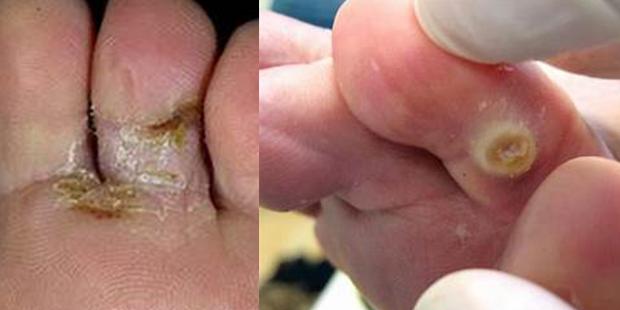 Запущенная стадия микоза между пальцами на ногах