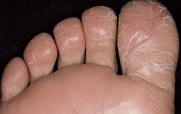 Основные симптомы микоза стоп