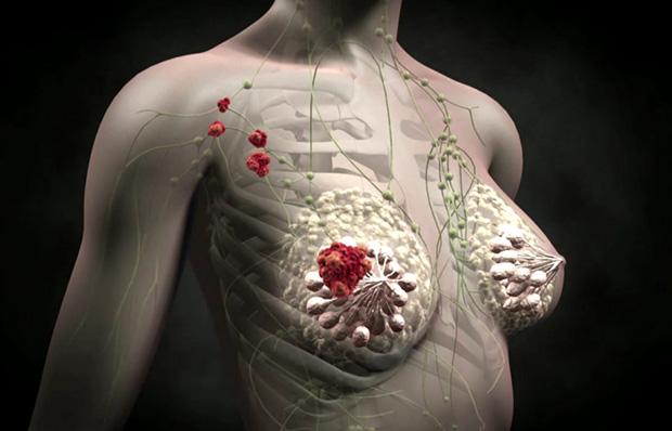 Онкология грудной железы