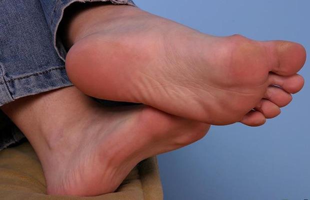 Покраснение кожи на ступнях