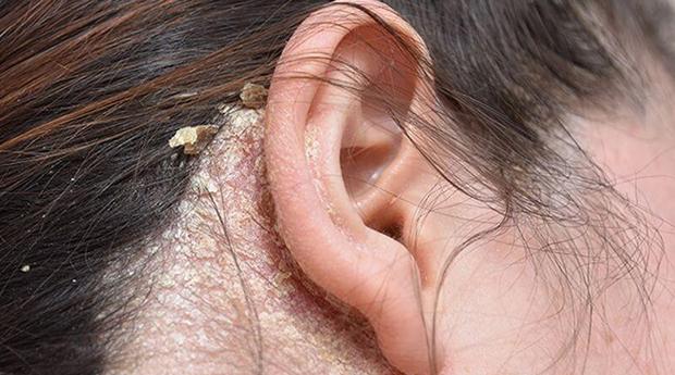 Симптомы сухой себореи