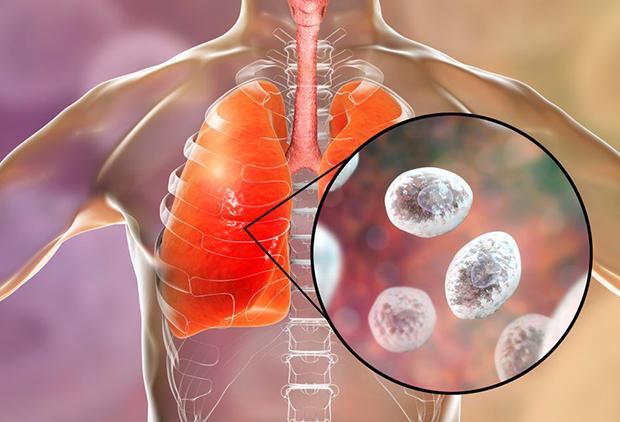 Симптомы, лечение, профилактика грибкового поражения легких