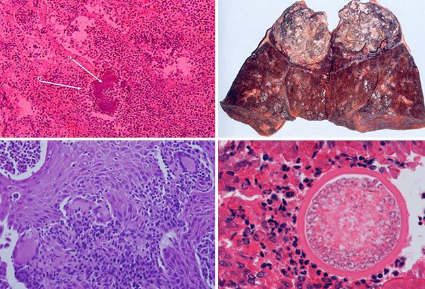 Разновидности грибкового заболевания