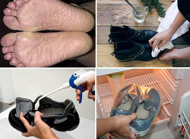 Способы обработки обуви при микозе стоп