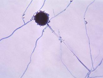 Причины, симптомы, диагностика и лечение грибка кожи — Аспергиллеза